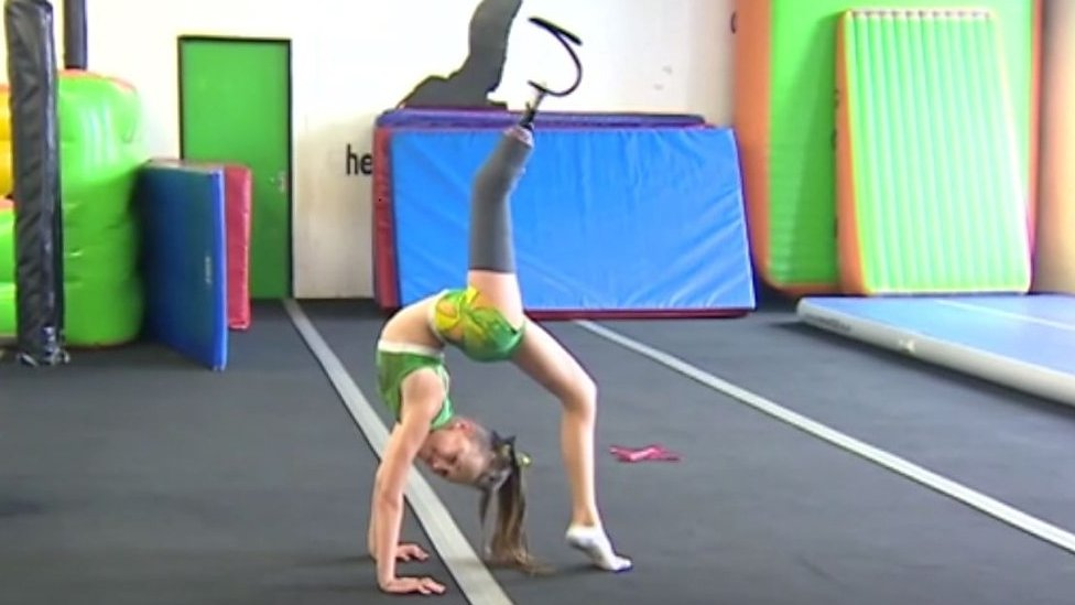 The 11-year-old cheerleader with a prosthetic leg