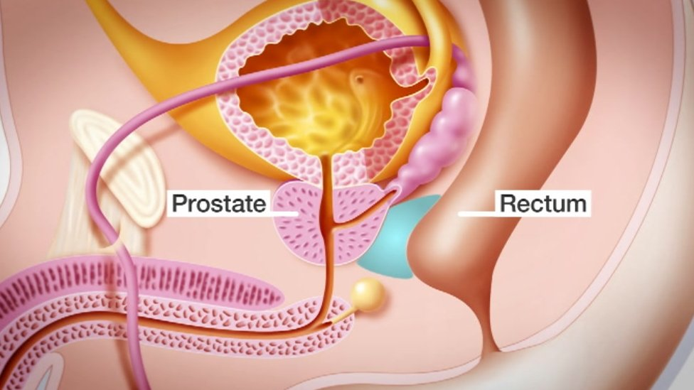 Diagram showing prostate gland with gel implant