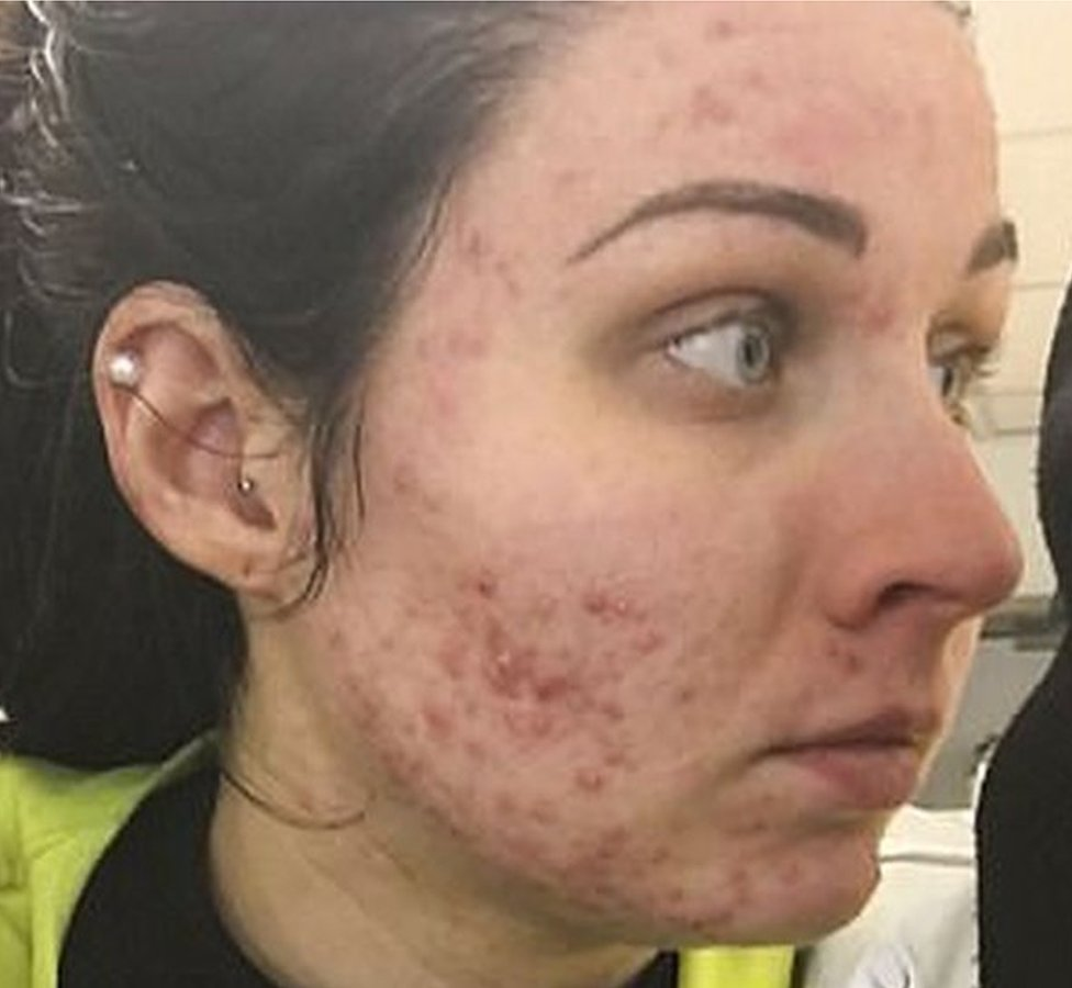 Body acne severe What Causes