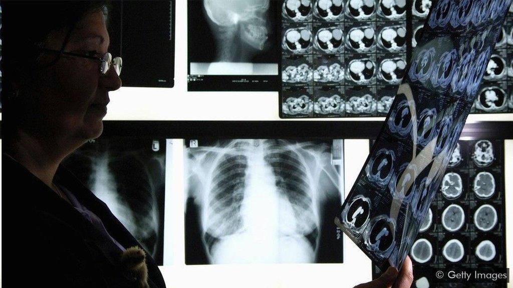 「蜂群智能」模式可幫助醫生使用X光診斷肺炎時減少三分之一的誤診。