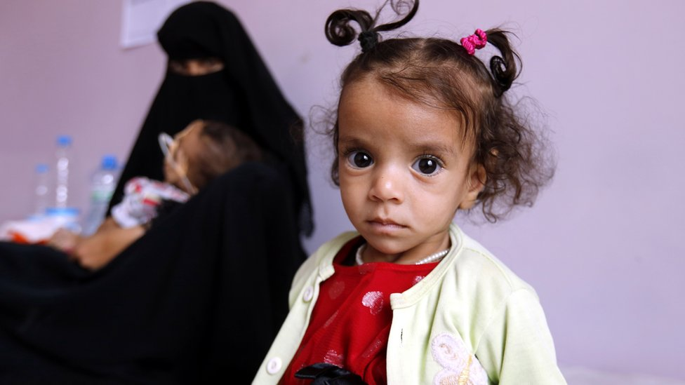 Malnourished child Hanin al-Watari, 10 months (R) sits on a bed as she receives treatment at the malnutrition treatment centre, in Sana'a, Yemen, 22 October