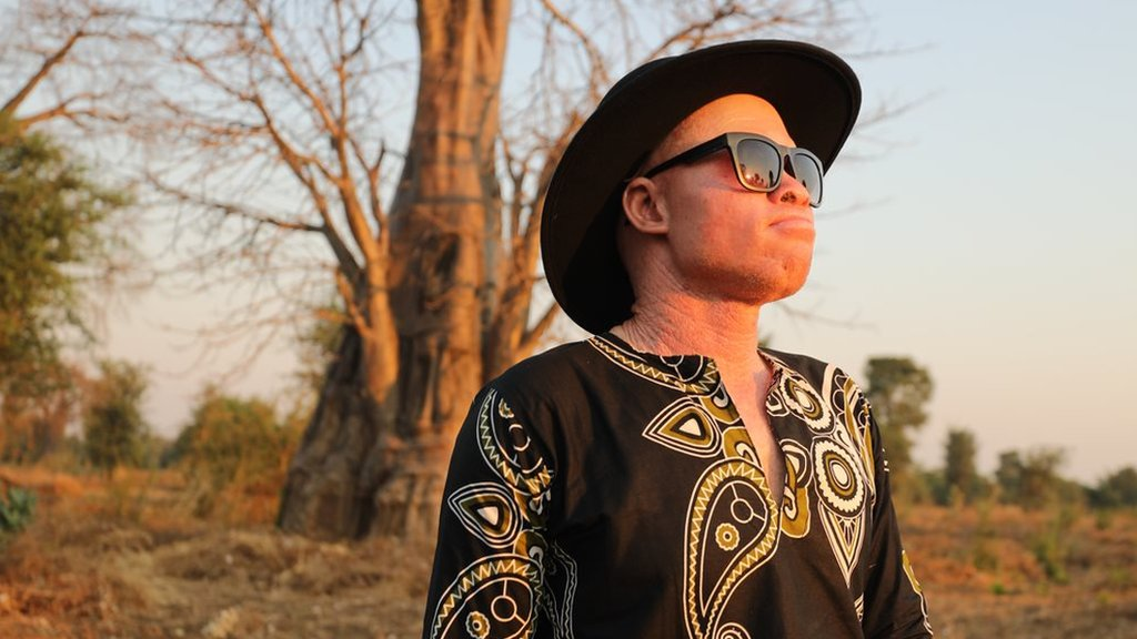 Meet Lazarus, the Malawian musician destroying myths about albinism