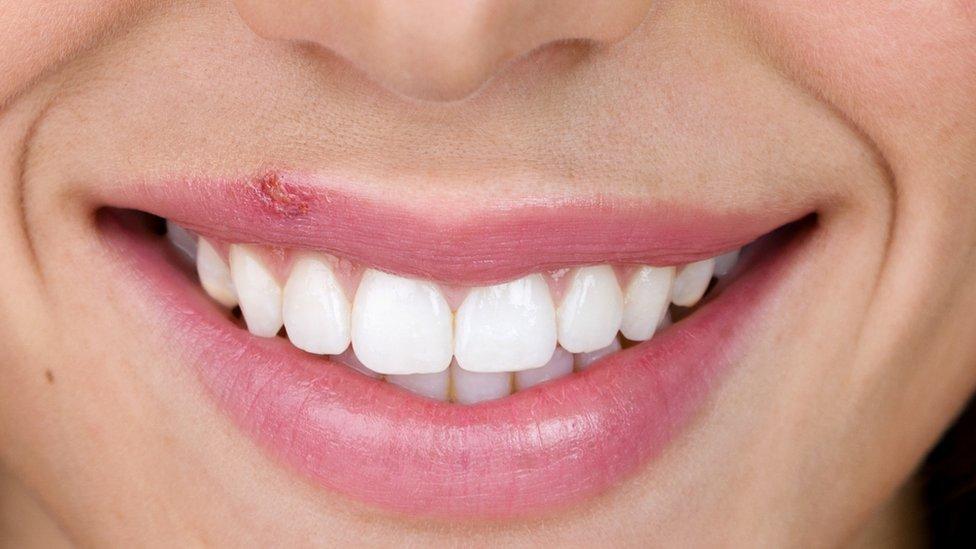 Mujer sonriendo con un herpes labial
