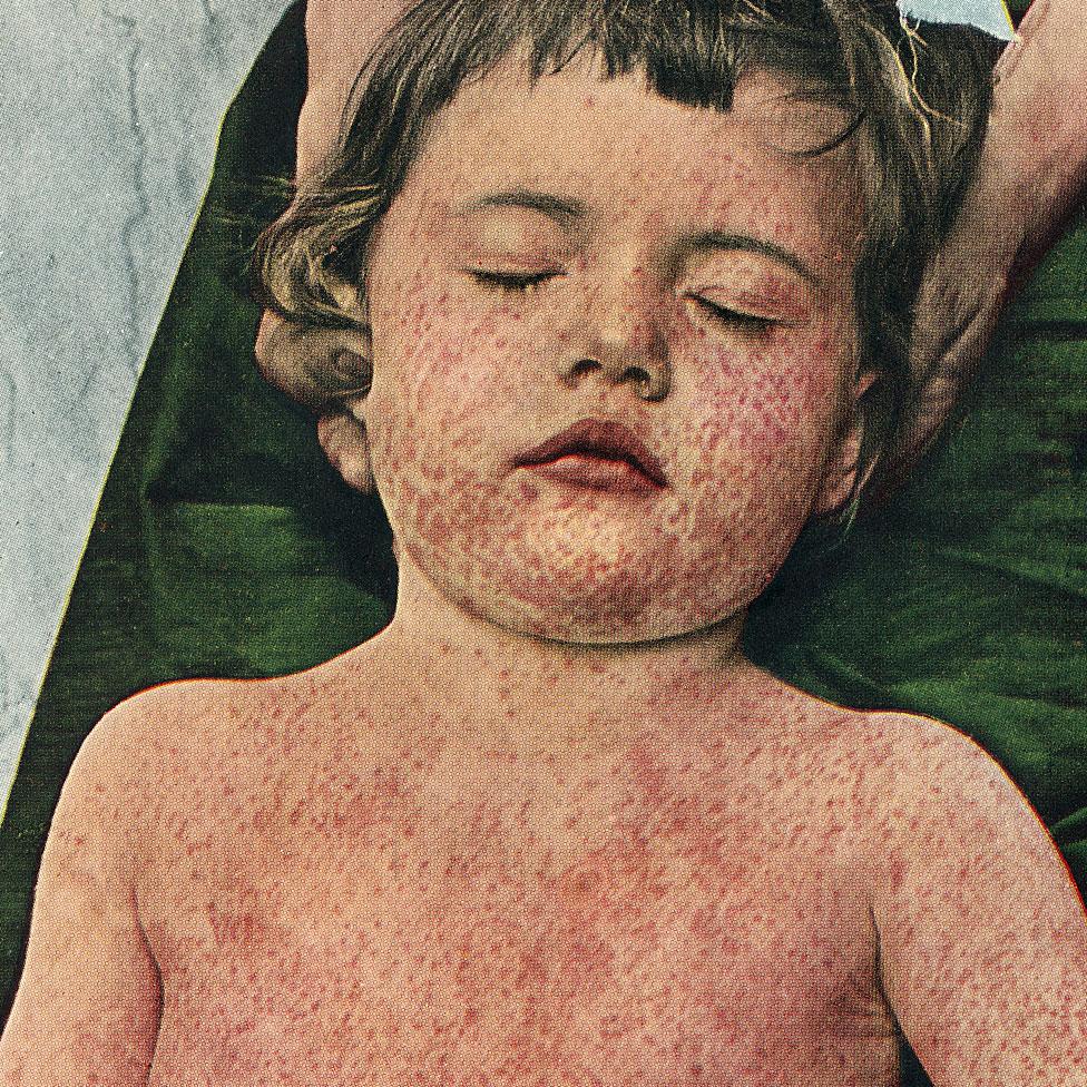 Imagen histórica de niña con sarampión