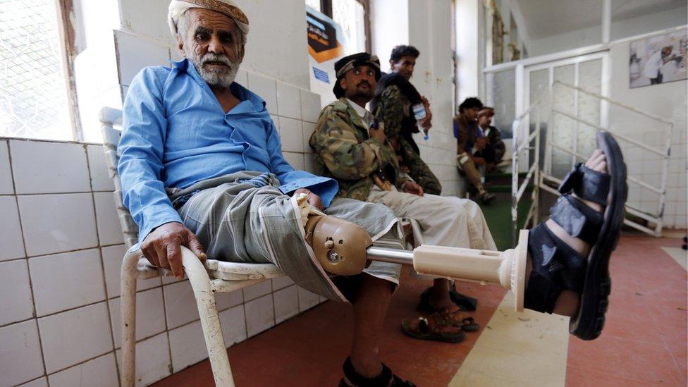 أحد المعاقين من ضحايا الحرب في اليمن في مركز للتأهيل