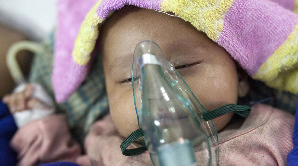 Un bebé con neumonía es nebulizado en Bangladesh
