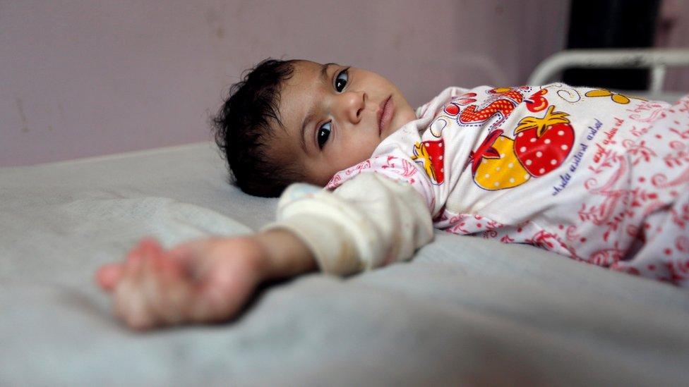 دخل اليمن في نفق مظلم وصراع داخلي منذ أوائل عام