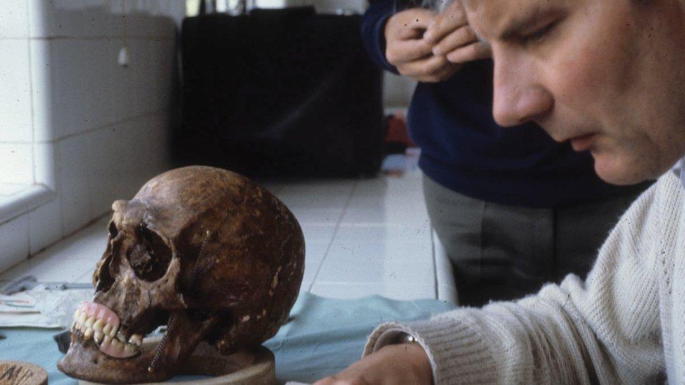 Richard Helmer con el cráneo