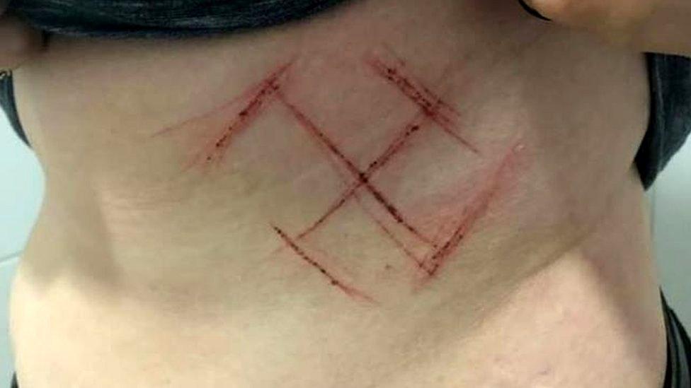 Foto de una esvástica marcada en la piel de una mujer.