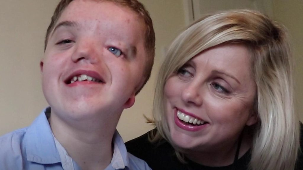 Mum of boy born with half a face on importance of interaction