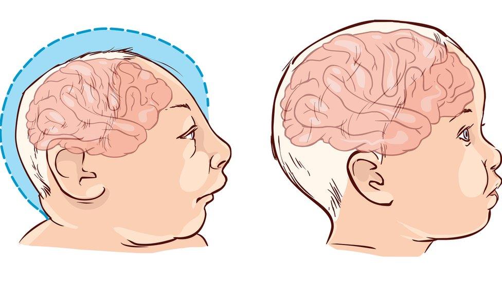 Ilustraciones de niño con microcefalia y niño con un cerebro normal