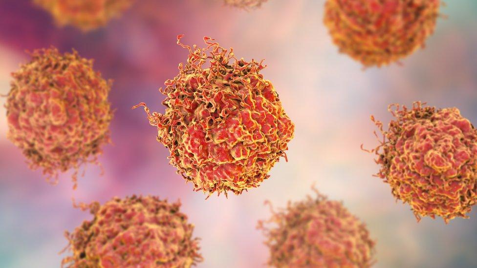 Células cancerígenas del cáncer de próstata.