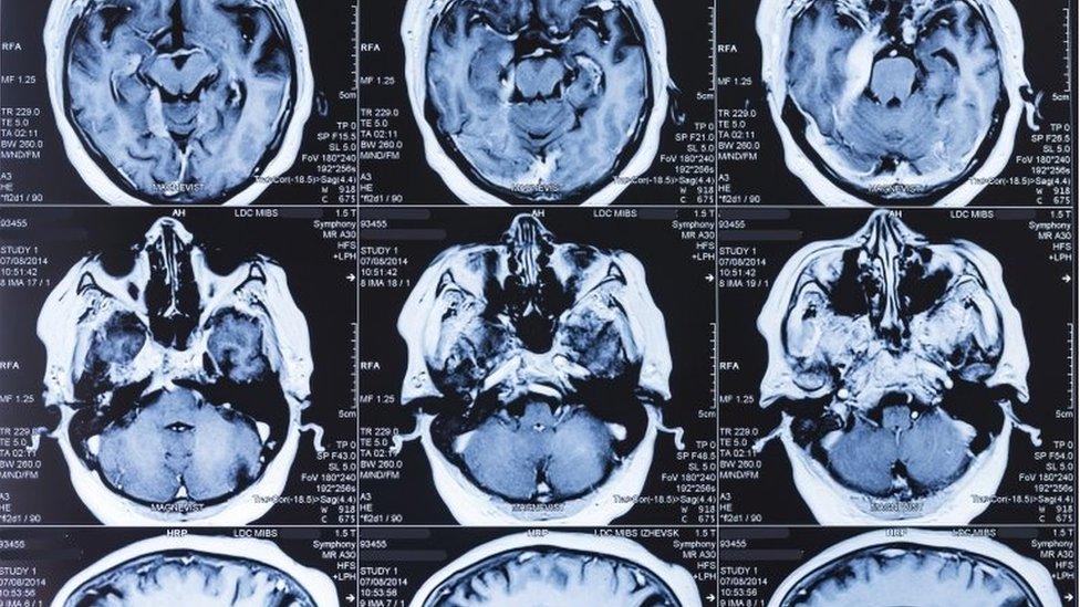 人腦核磁共振影像