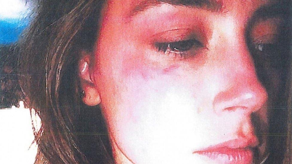 دليل مصور لدعم ادعاءات آمبر هيرد بتعرضها للعنف