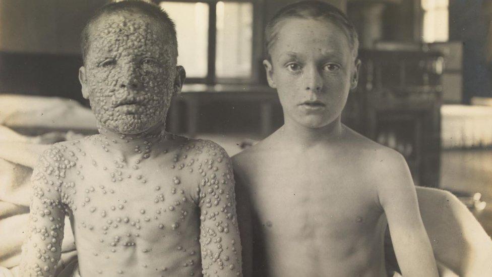 Dos hermanos, uno vacunado y otro no, fotografiados en el pabellón de aislamiento en el hospital de Leicester.