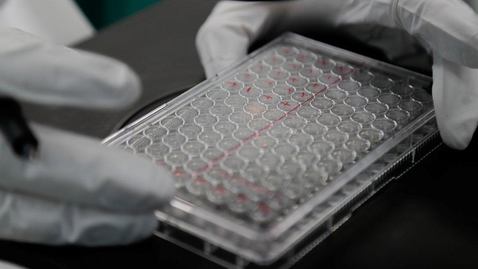 Pruebas de laboratorio en Rusia para encontrar una vacuna contra el coronaviurs
