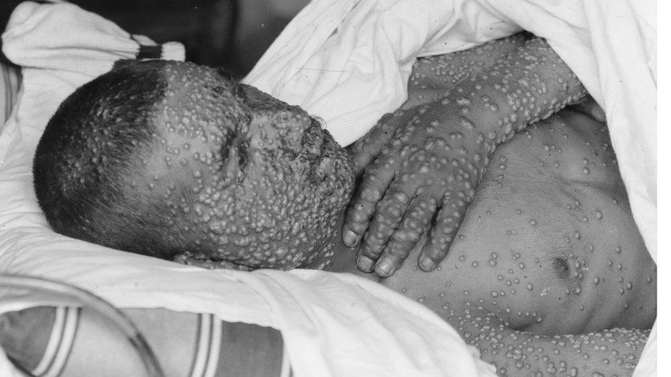 A smallpox victim