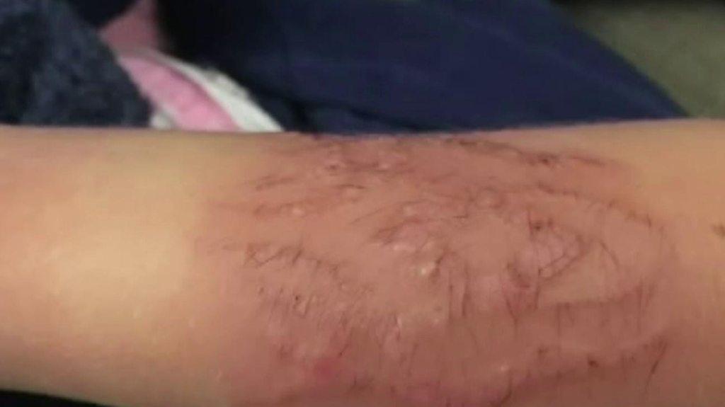 Warning after Kent boy's henna tattoo burns