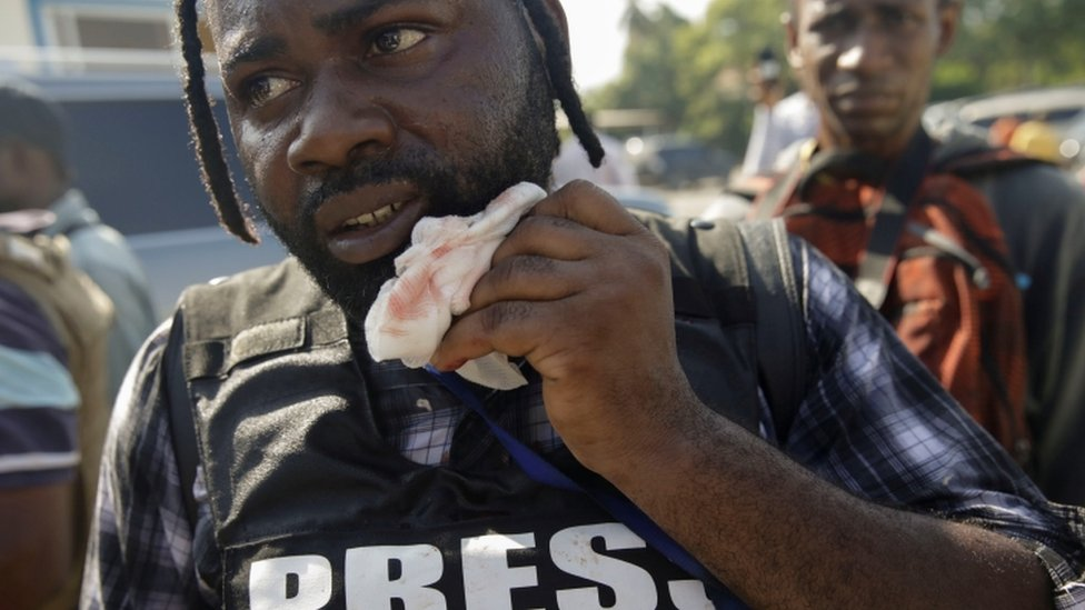 Photojournalist Chery Dieu-Nalio holds a gauze next to his mouth