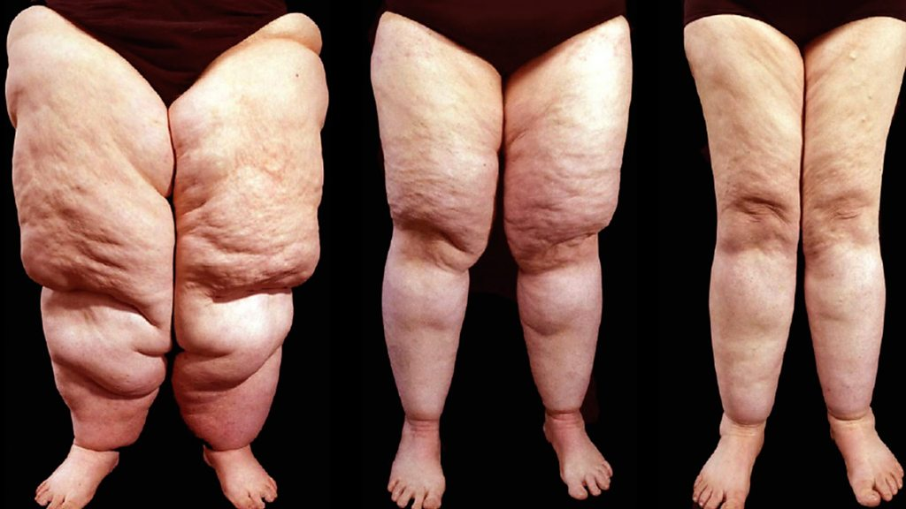 The battle for lipoedema surgery: 'I'm in constant pain'