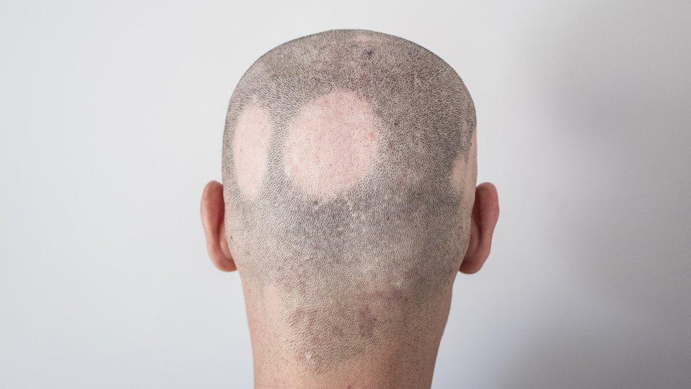 Hombre con alopecia areata, que acabó con áreas calvas en el cuero cabelludo.