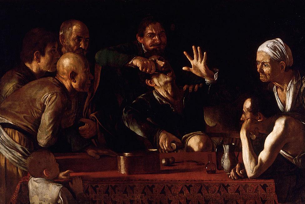 """El dolor de la sacada de una muela en la obra de Michelangelo Merisi da Caravaggio (1571 - 1610) """"El extractor de dientes""""."""