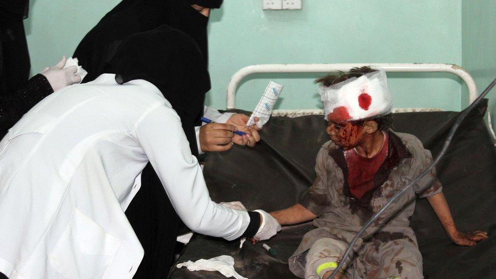 صبي يمني يتلقى العلاج في المستشفى