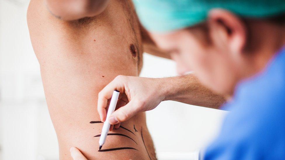 Doktor iscrtava pacijenta pre operacije