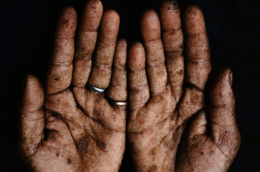 Unas manos con síntomas de intoxicación de arsénico