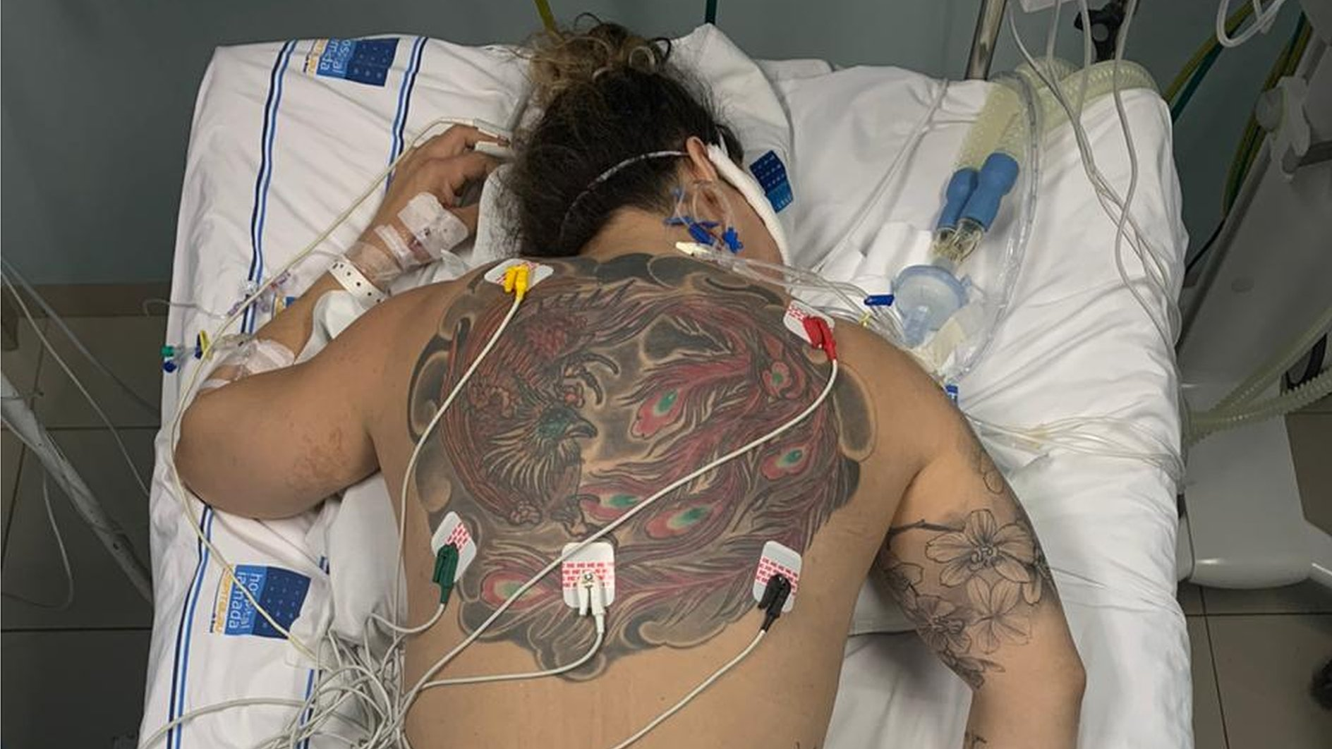"""Korona virus i Brazil: """"Zašto sam na mrežama podelila slike kako se borim za život protiv Kovida-19"""