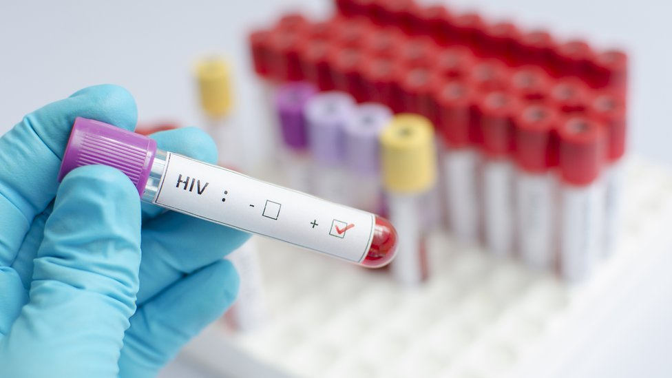 HIV vaccine shows promise in human trial