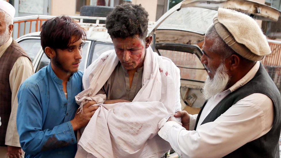 A boy who was injured in an explosion that targeted the Friday congregation prayers at a Mosque in Haska Mina district of Nangarhar province, receives medical treatment at a hospital