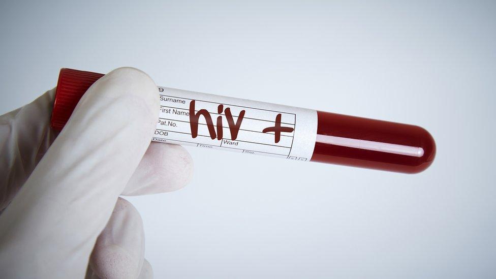 Una probeta con HIV +.