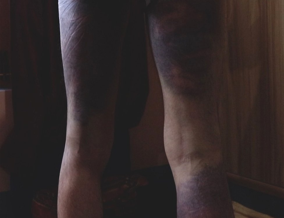Bruising on the back of the legs of an alleged victim