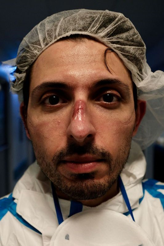 A male nurse with wounds on his nose and cheeks caused by protective equipment