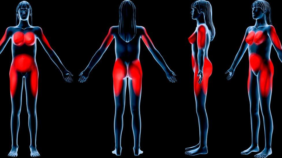 Distribución típica de la grasa en una mujer