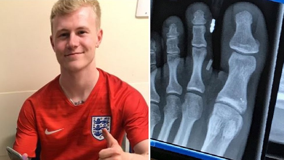 World Cup 2018: England fan's hospital visit after late goal