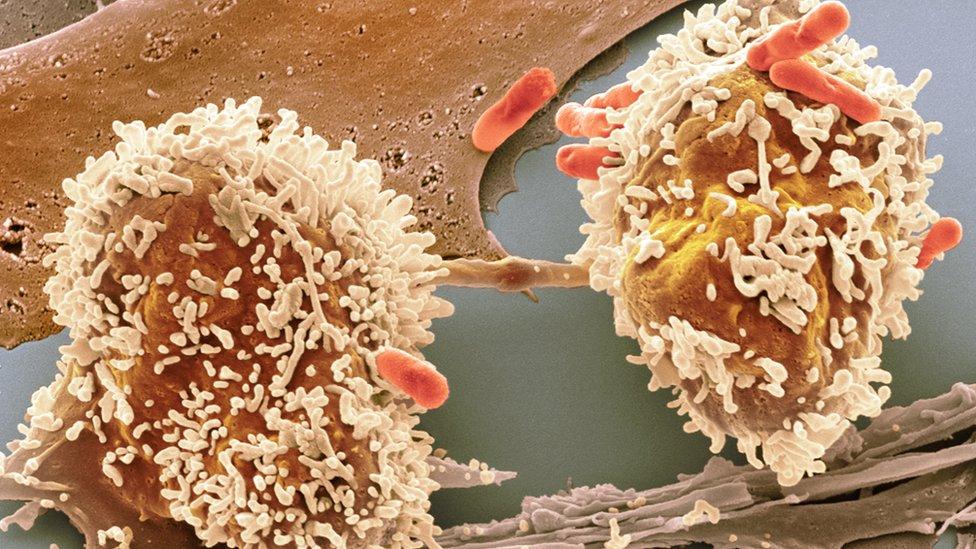bowel cancer cells