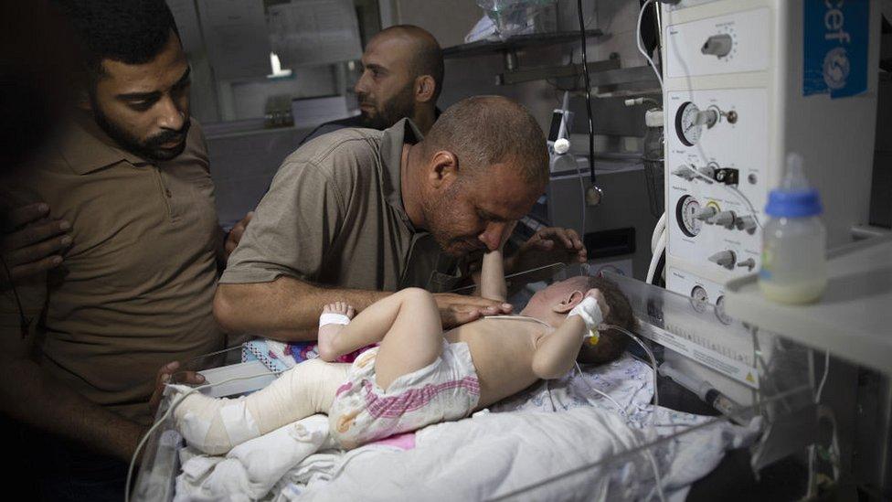 Omar bebek, annesi ve kardeşlerini öldüren bombardımanda o binadan hayatta kalan tek kişi oldu