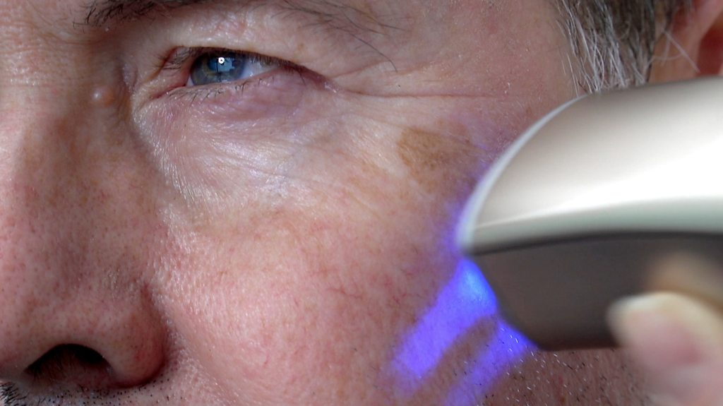 CES 2019: Skin printer wipes years from your face