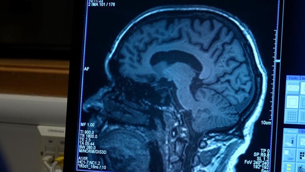 İngiltere'de deneylere katılan Aldo Ceresa'nın beynine ilacın etkisini ölçmek için düzenli olarak bakıldı