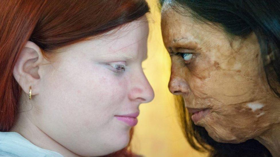 Silvia Alessi fotografió juntas a una superviviente de un ataque con ácido y a una mujer con albinismo