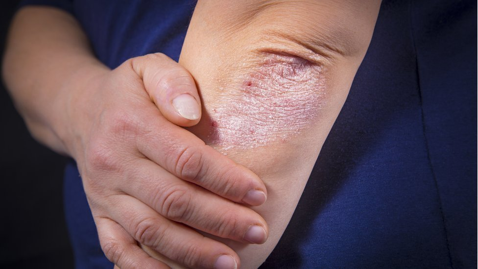 Codo con psoriasis
