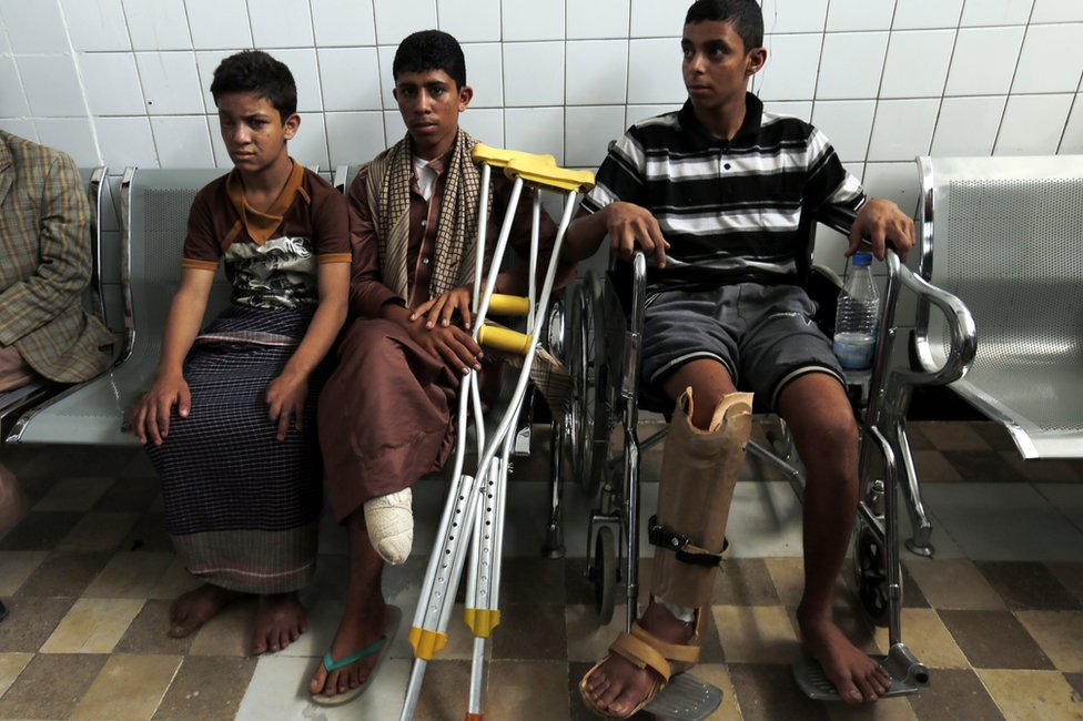 Disabled young Yemenis wait for treatment at a rehabilitation centre in Sanaa (4 June 2016)