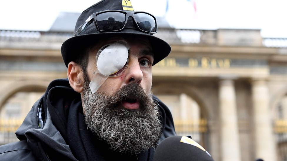 """Jerome Rodrigues, one of the leading figures of the """"yellow vests"""" (gilets jaunes) movement, speaks to the press outside the Council of State in Paris, on January 30, 2019, after he was severely injured in the eye during a """"yellow vest"""" anti-government protest."""