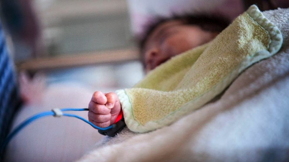 Un oxímetro controla los niveles de oxigenación en la sangre de un bebé en Francia.