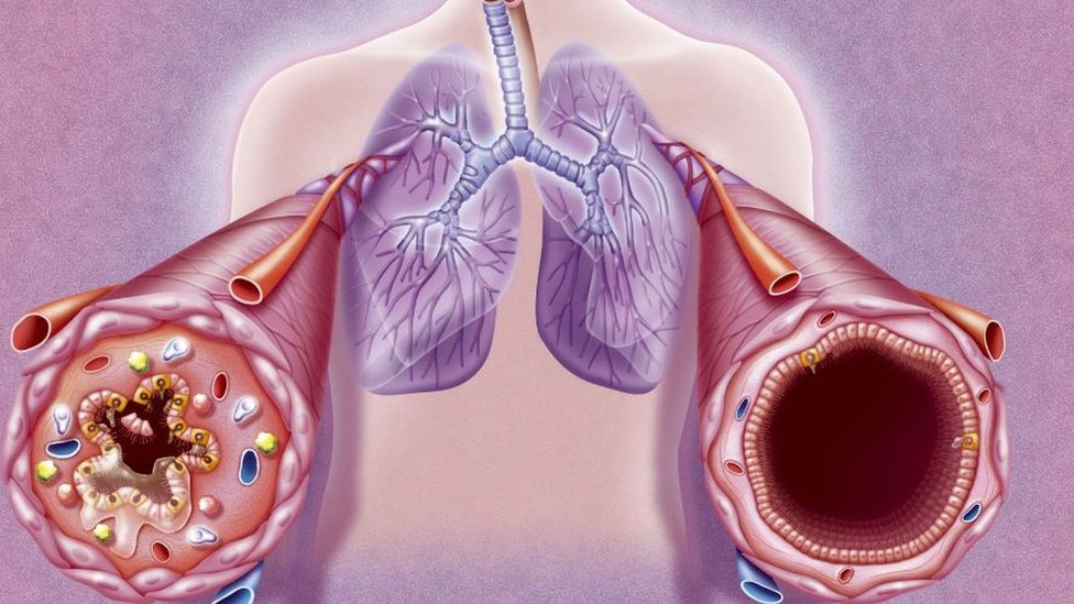 The bronchial tubes during an asthma attack and in a normal state
