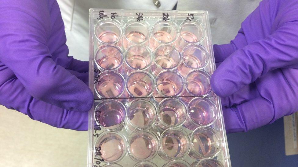 Las estructuras donde se cultiva la carne a partir de células madre.