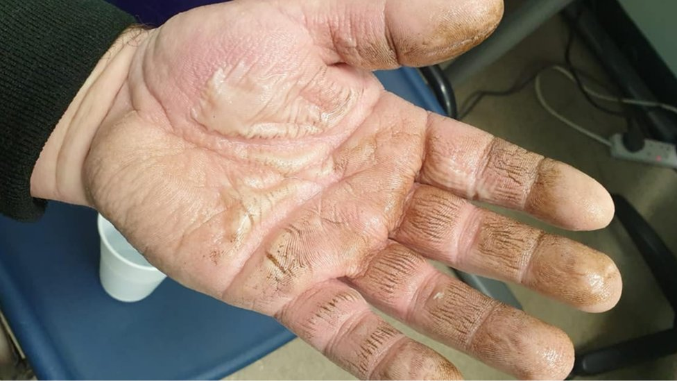 Myles Charles' burnt hand