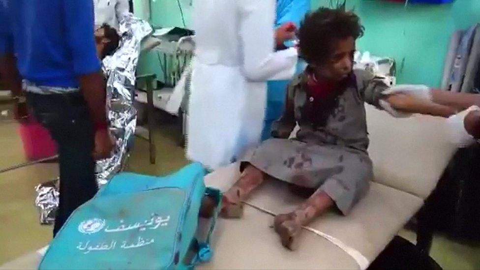 Rat u Jemenu: Deca stradala u napadu na autobus